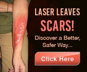 I chose this natural method over laser removal and I was right . See why via this video