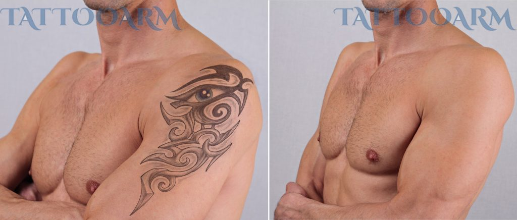 non laser tattoo removal