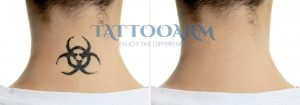 laserless tattoo removal before after