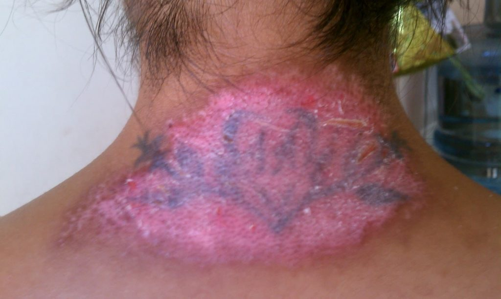 tattoo removal cream side effects